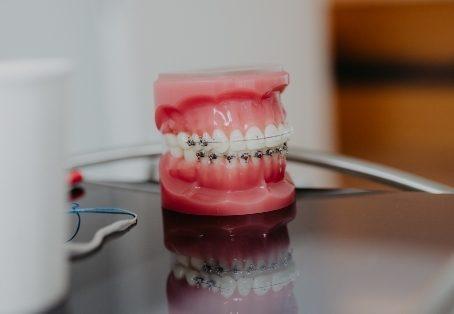 Feste Zahnspangen